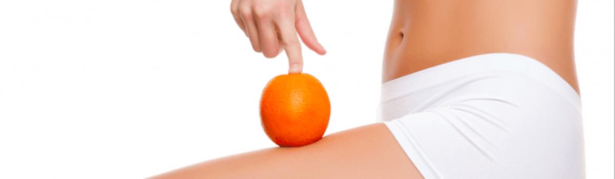 La gran enemiga del bikini: la celulitis